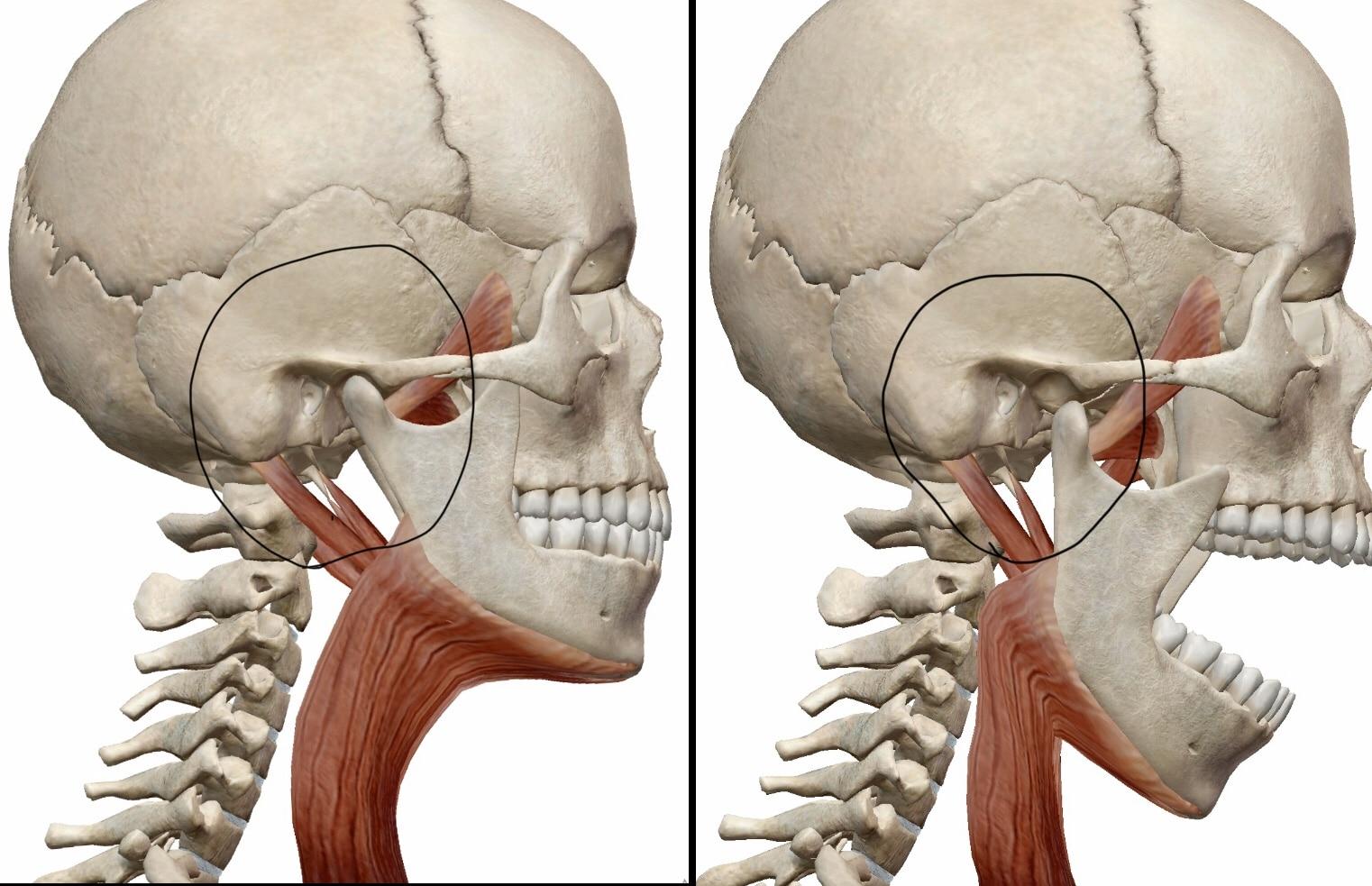 顎関節の図