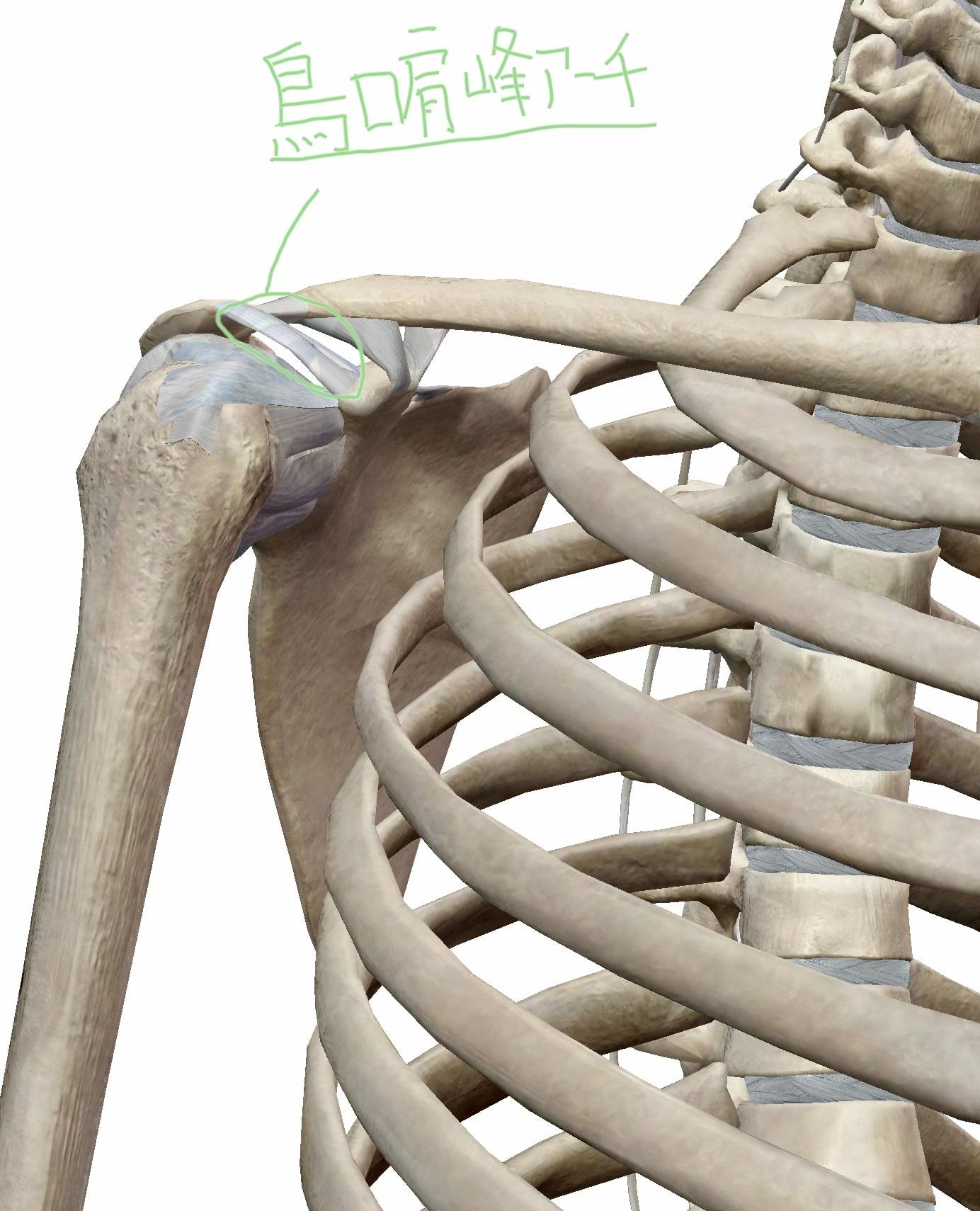 鎖骨と肩甲骨と烏口肩峰靭帯によって形成される烏口肩峰アーチの図
