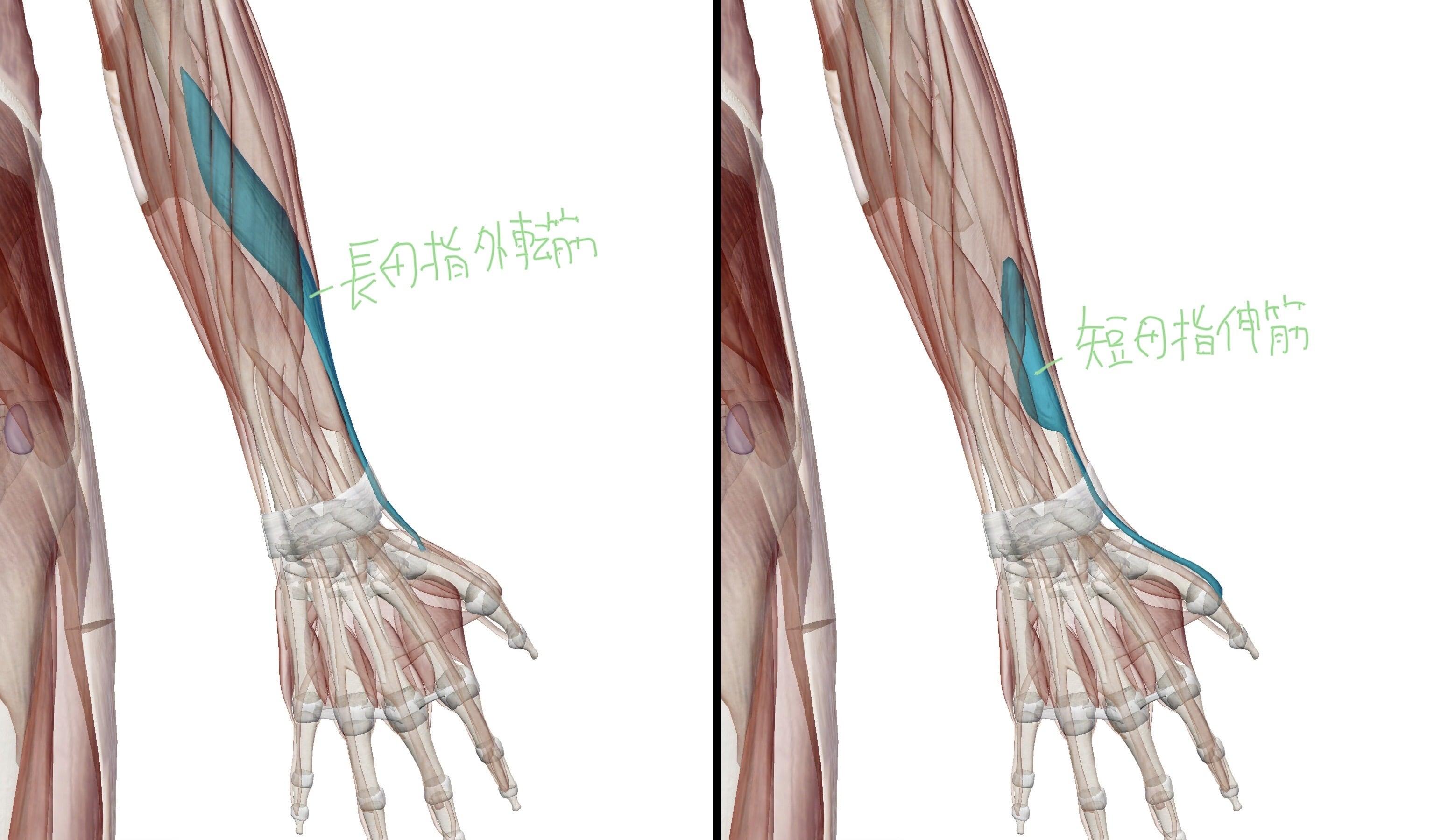 ドケルバン病を引き起こす長母指外転筋と短母指伸筋の図