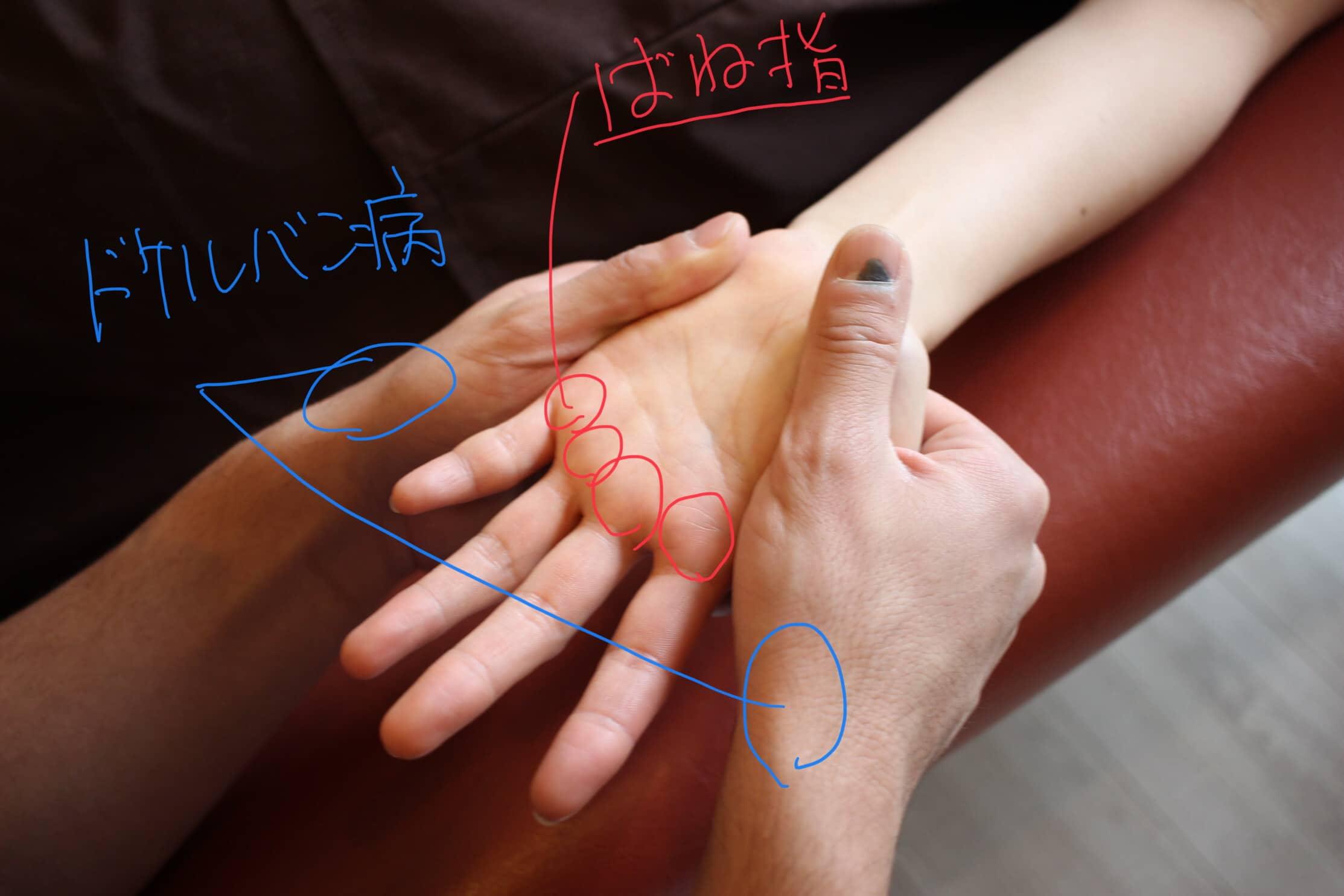 腱鞘炎の起こる箇所による違いの図