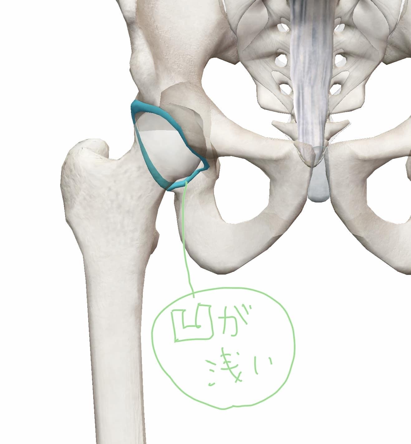骨盤の凹が浅い図