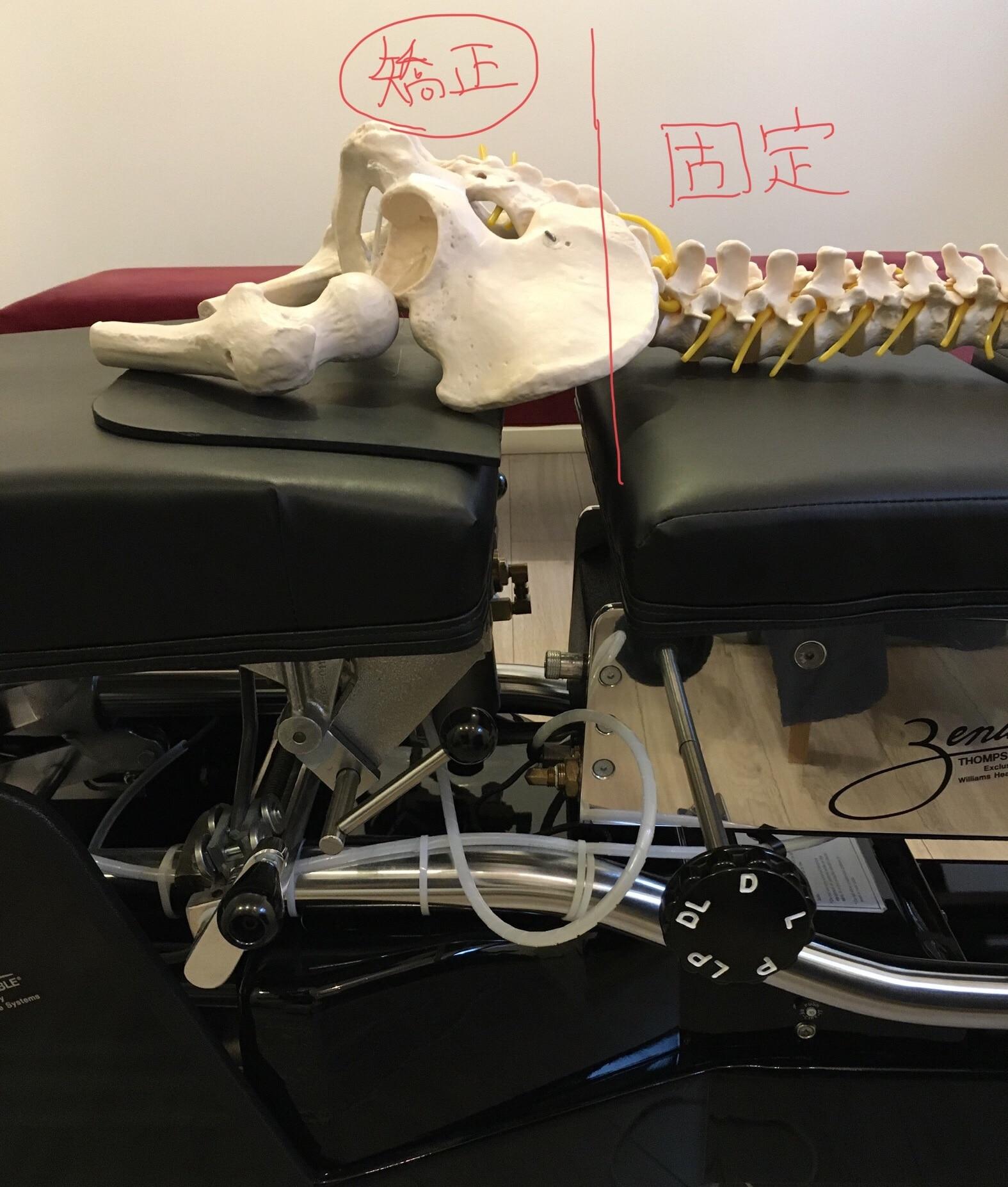 専用ベッドを用いて尾てい骨を矯正する時のイメージ