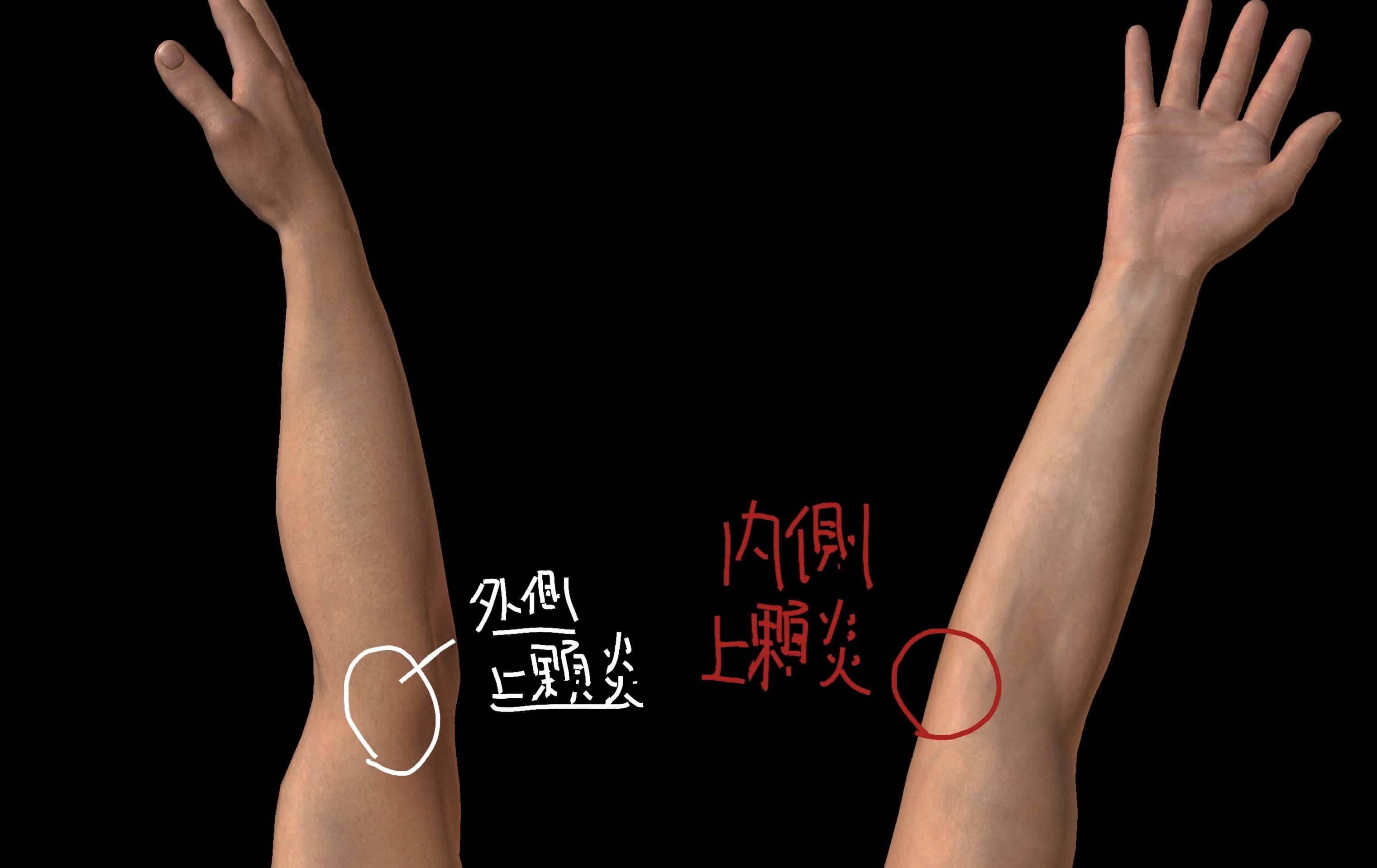 上腕骨外側上顆炎・上腕骨内側上顆炎で痛む位置の図