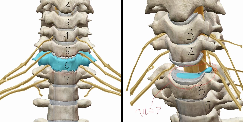 変形した首の骨とヘルニアを起こした椎間板の図