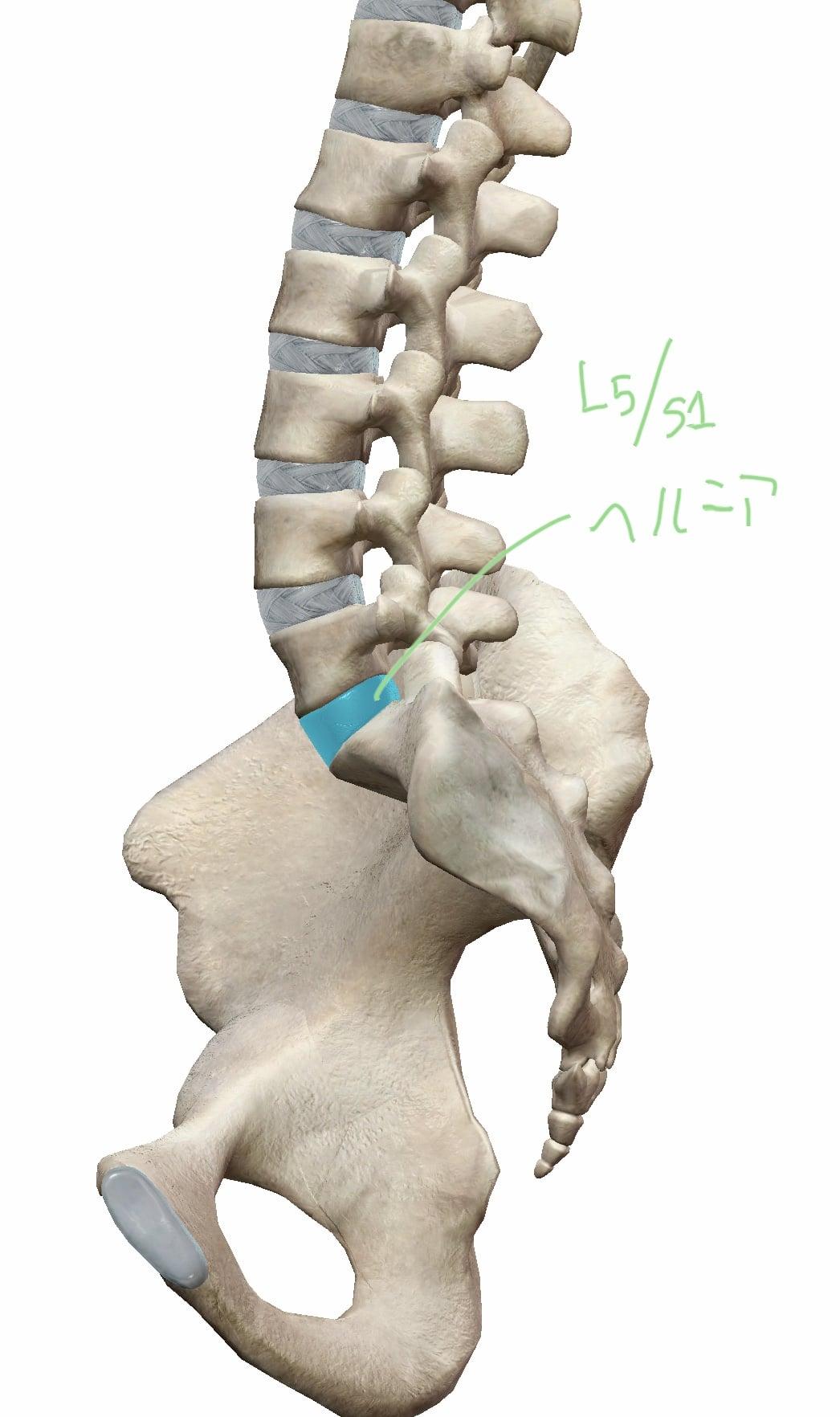 第5腰椎と仙骨間の椎間板にヘルニアがあった際の図