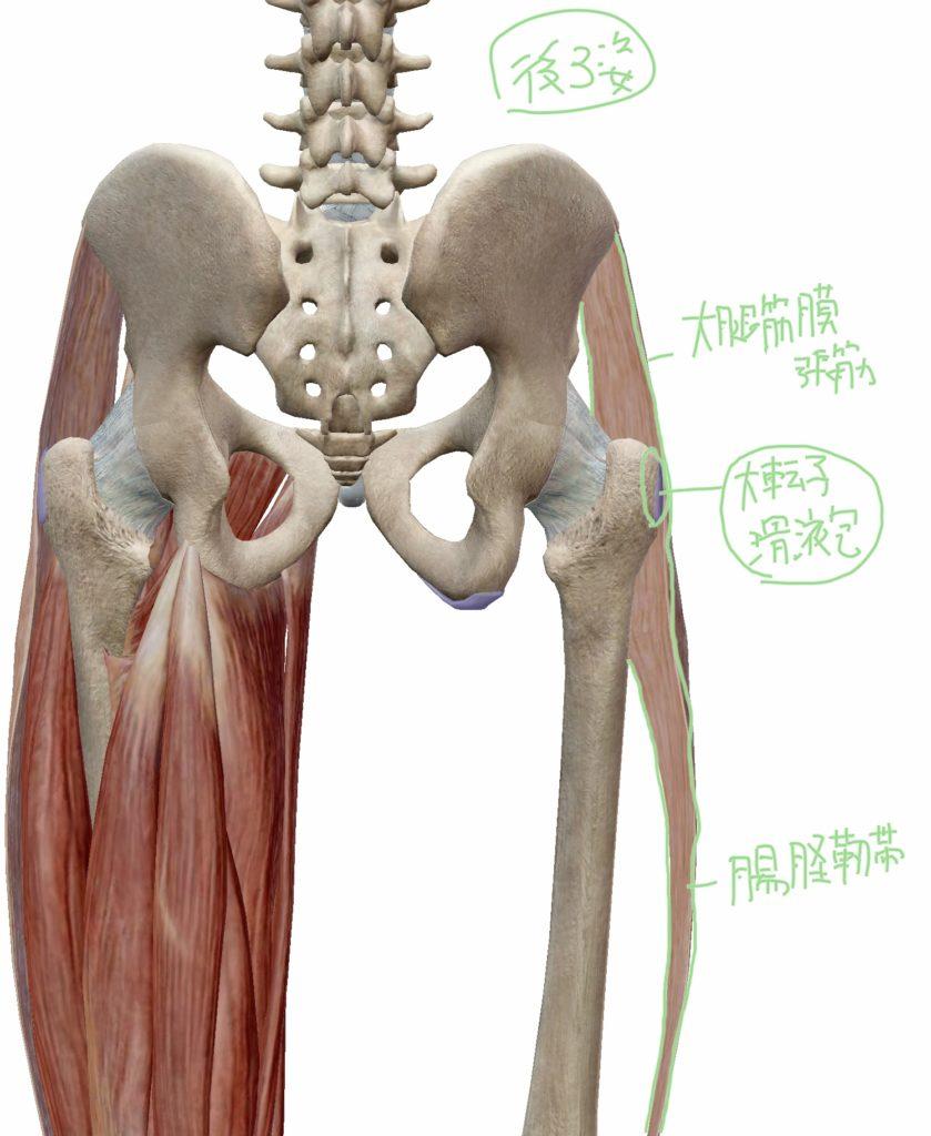 大転子滑液包炎と腸脛靭帯炎で痛む場所を示した図