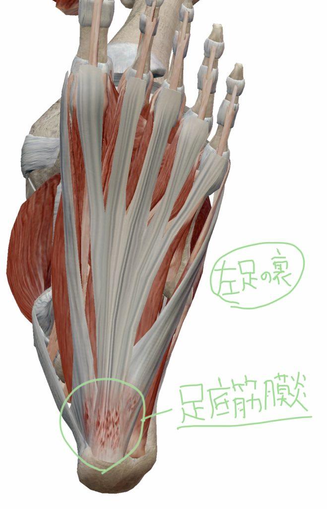足底筋膜炎(足底筋膜炎)の図