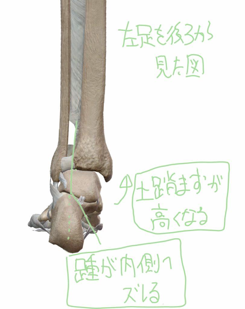 足を後方から見た距骨下関節と距腿関節の位置で距骨下関節(踵が)内側にズレている図