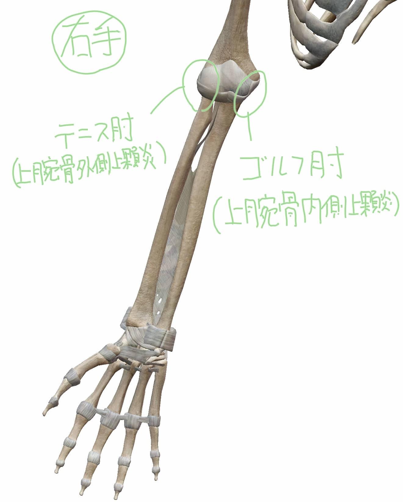 ゴルフ肘(上腕骨内側上顆炎)・テニス肘(上腕骨外側上顆炎)の位置関係の図