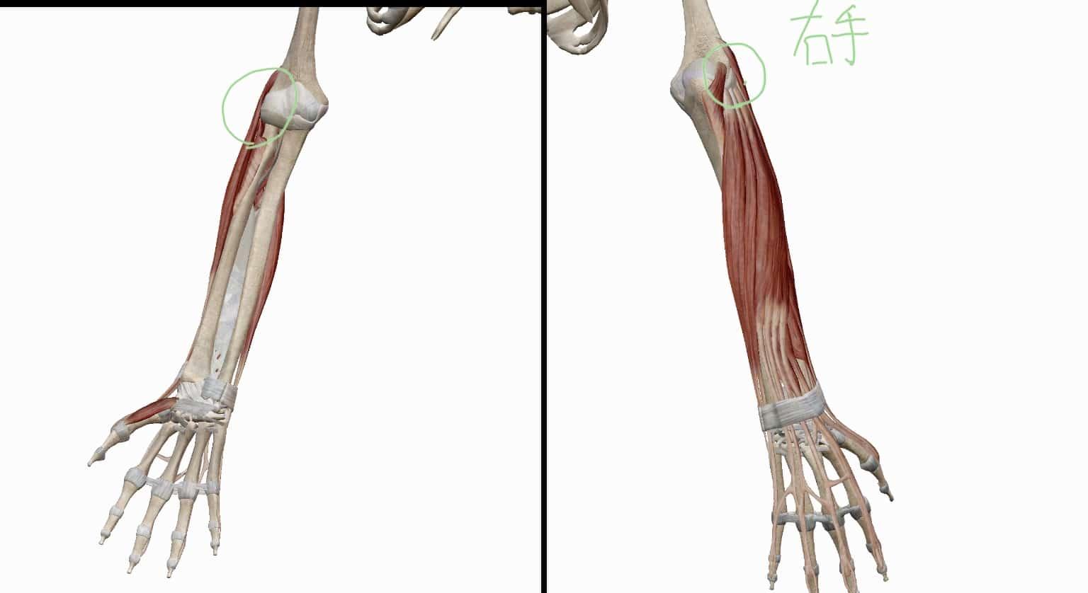テニス肘(上腕骨外側上顆炎)と関係する筋肉の位置関係の図