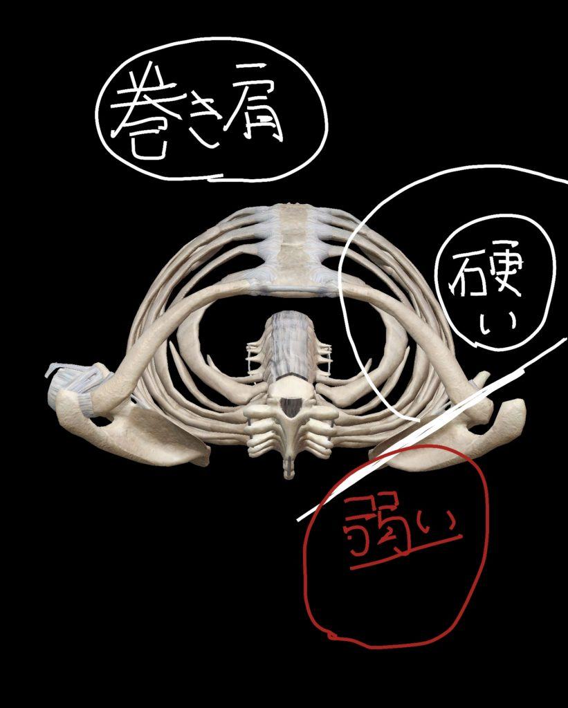 肩甲骨の位置関係による硬い筋肉と弱い筋肉