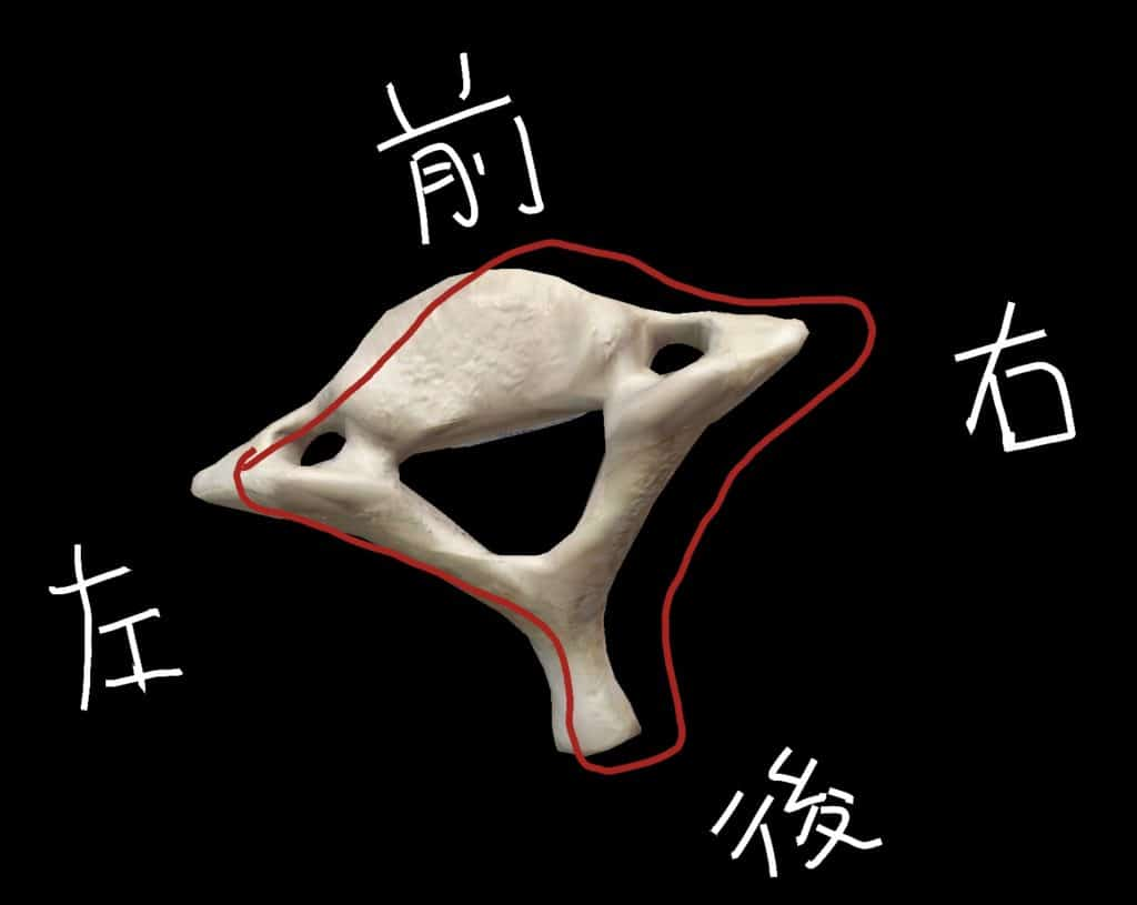 第7頸椎が左に回旋してズレた図