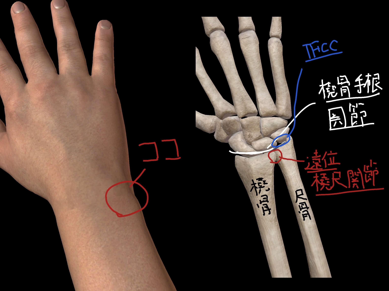 痛みを感じる部分の体表図と骨や関節の図