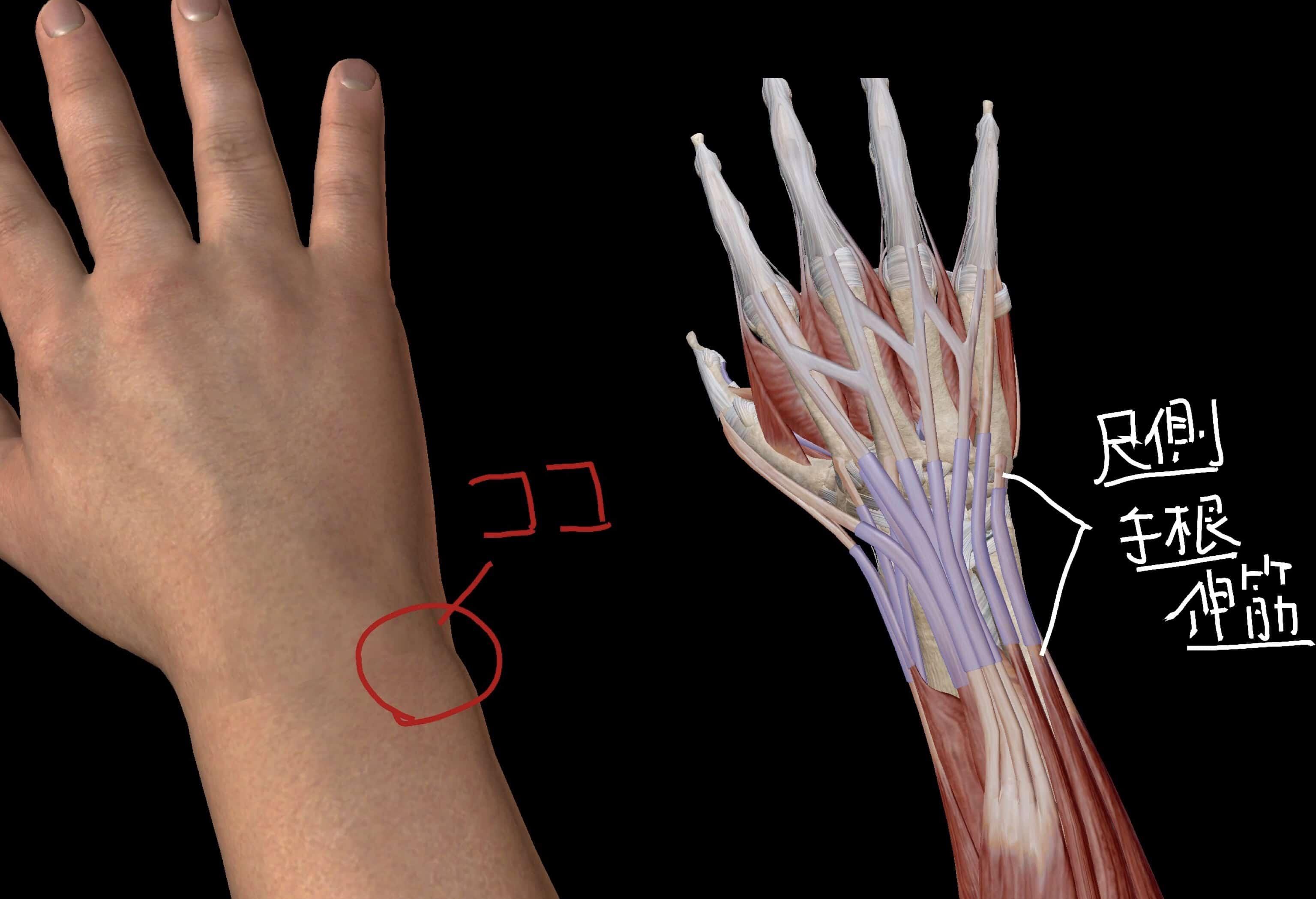 痛みを感じる部分の体表図と筋肉の図